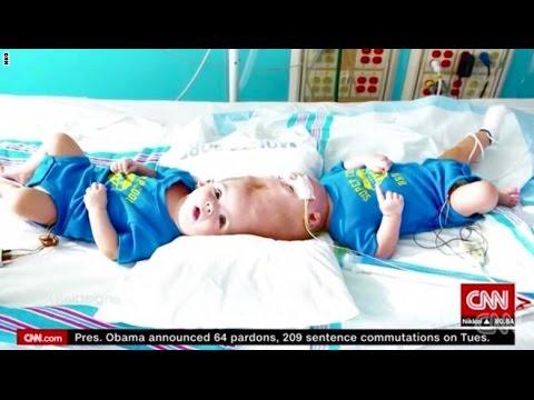 العرب اليوم - شاهد فصل رأس توأمين داخل غرفة العمليات