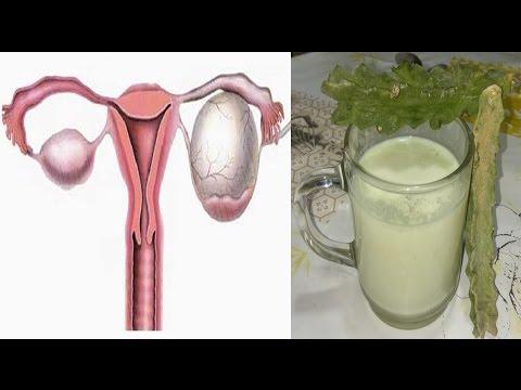العرب اليوم - شاهد وصفة مضمونة لعلاج تكيس المبيض
