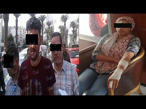 العرب اليوم - شاهد رجل يتسبب في تشويه جسد أستاذة
