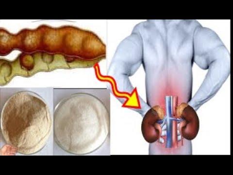 العرب اليوم - وصفة جديدة حيّرت الأطباء لعلاج الفشل الكلوي وأمراض الكلى