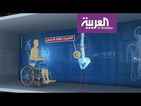 شاب يستعيد القدرة على المشي بفضل قطب كهربائي