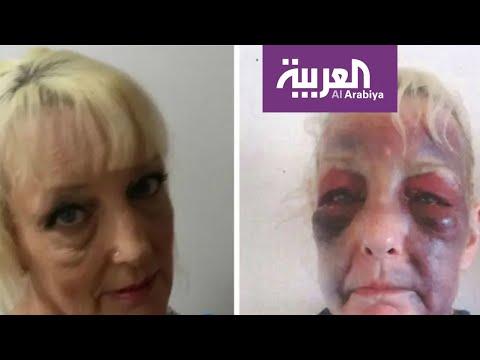 صور صادمة لعجوز بريطانية تتعرض للضرب من صديقها