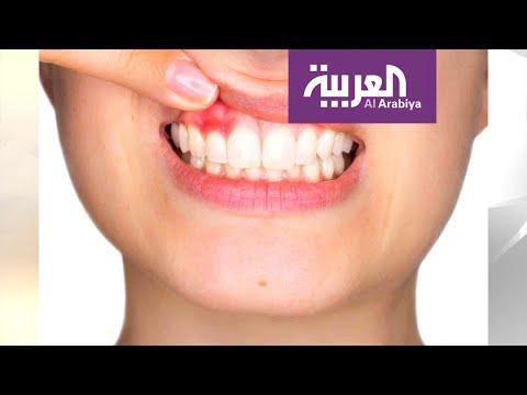 شاهد اللثة السليمة أساس لأسنان قوية لأسلوب حياة صحي