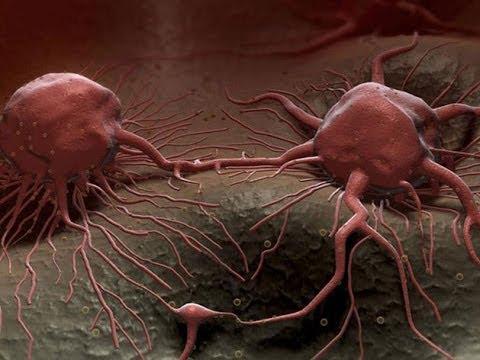 فيروس الحصبة يساعد فى علاج السرطان