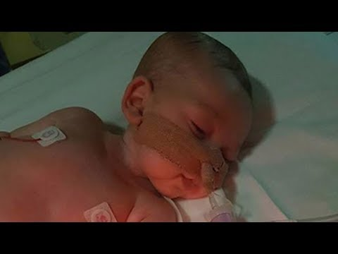 48 hours to decide baby charlie gard's life