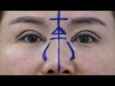 plastic surgery has become a big business in china