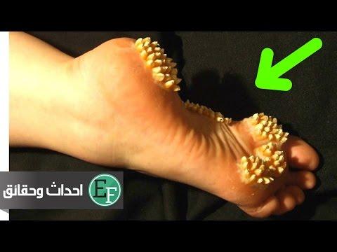 العرب اليوم - شاهد هل تعلم هذه الحقائق من قبل