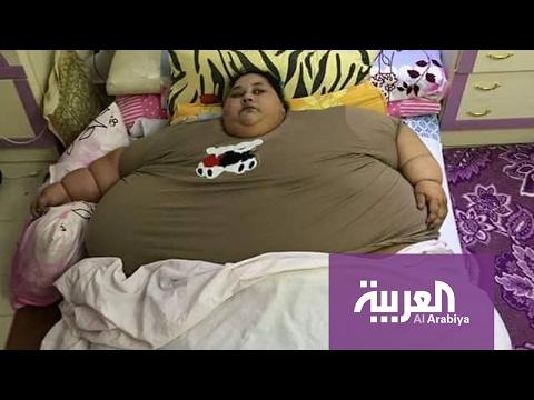 العرب اليوم - شاهد استشارية نفسية تستعرض أهمية الرعاية لمرضى السُمنة