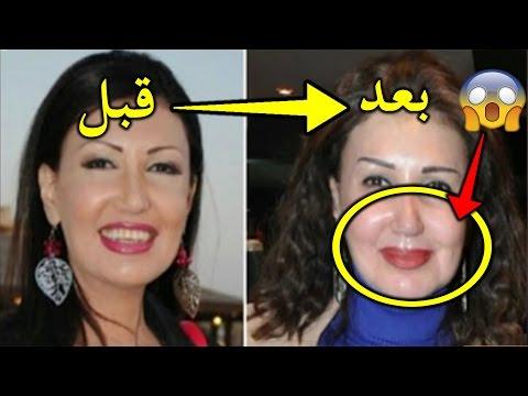 العرب اليوم - شاهد فنانة مصرية تروي مأساتها مع عمليات التجميل