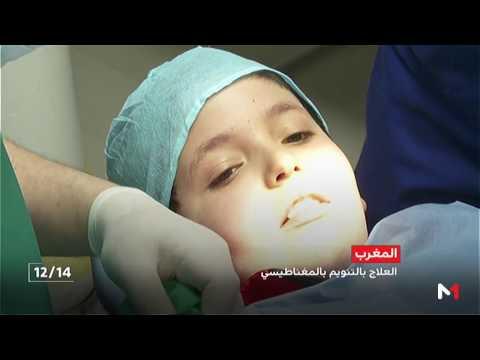 العرب اليوم - شاهد التنويم المغناطيسي طريقة حديثة يعتمد عليها الأطباء
