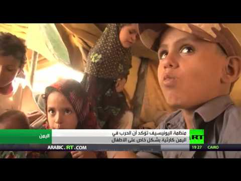 العرب اليوم - شاهد اليونيسيف تؤكد أن الحرب كارثية على أطفال اليمن