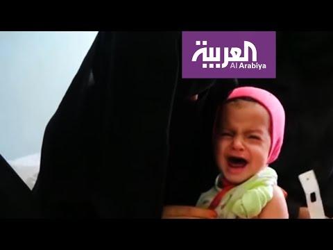 العرب اليوم - كابوس الجوع في اليمن يتحول لاسوأ كارثة في العالم