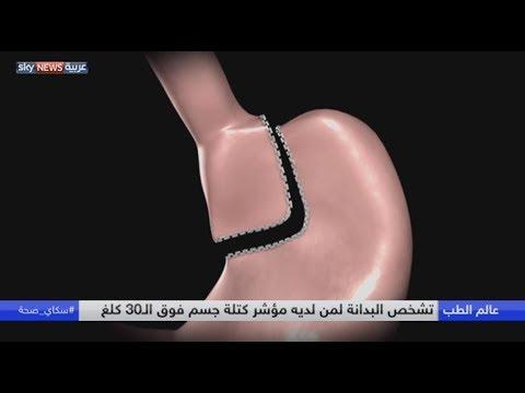 العرب اليوم - شاهد البدانة مرتبطة بالسكري والقلب والسرطان
