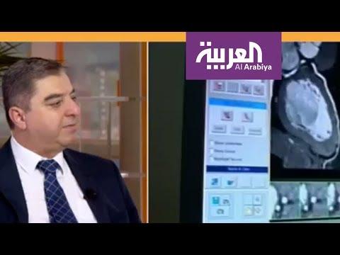 العرب اليوم - أسباب الشيب المبكر وعلاقتها أمراض القلب