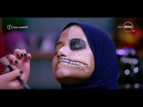 العرب اليوم - شاهد نادين محمد تحّول وجه أحد صديقاتها لشكل مرعب