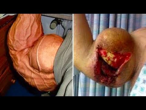 العرب اليوم - 5 لاعبين كمال الأجسام انفجرت عضلاتهم بشكل مرعب