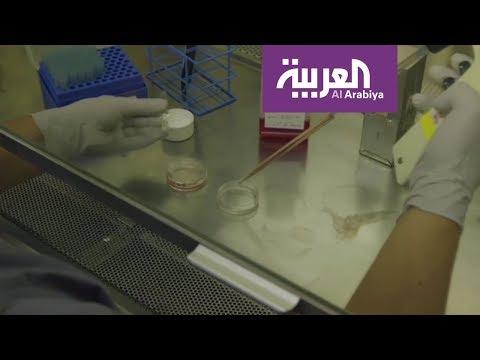 العرب اليوم - شاهد مِقَصُ الجينات تقنيةٌ تفتح البابَ لأجيالٍ جديدة بلا أمراض