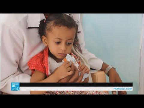 العرب اليوم - شاهد المدنيون في صنعاء يدفعون ثمن المعارك المستمرة