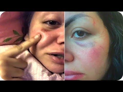 العرب اليوم - جيهان هاشم تتعرض للضرب من خطيبها وتعترف بأنها مطلقة