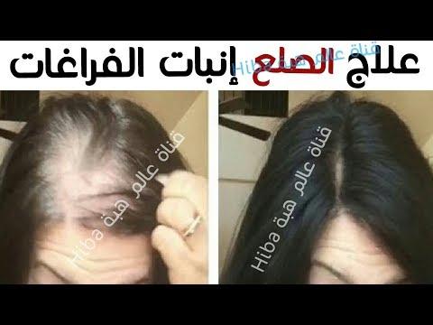 العرب اليوم - تعرّف على أقوى وصفة لمنع تساقط الشعر