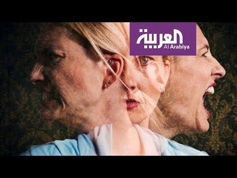 العرب اليوم - شاهد 60 مليون شخص يعانون من اضطراب ثنائي القطب
