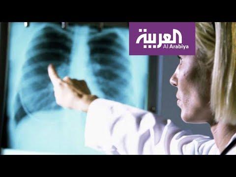 العرب اليوم - شاهد السيجارة الالكترونية لا تسبب تجمّع الماء في الرئة