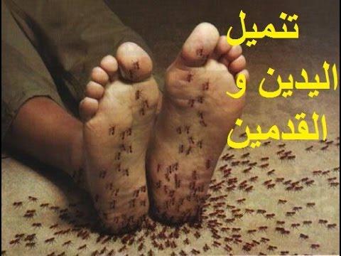 العرب اليوم - تعرف على وصفة سحرية لعلاج تنميل الأطراف