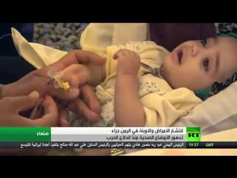 العرب اليوم - شاهد تدهور الوضع الصحي منذ اندلاع حرب اليمن