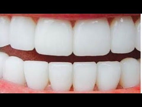 العرب اليوم - بالفيديو تبييض الأسنان في دقيقتين وإزالة الاصفرار بمكونين فقط
