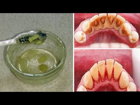 وصفة لإزالة جير الأسنان في 5 دقائق