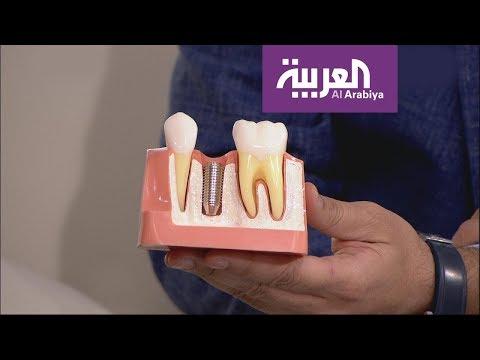 شاهد عرض حي وقصير لطريقة زراعة الأسنان
