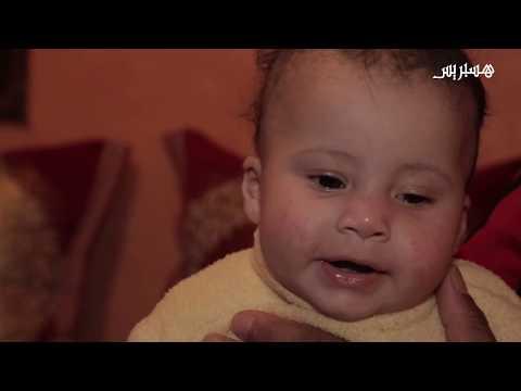 شاهد رميساء طفلة قلبها بالجهة اليمنى وتحتاج لعملية جراحية باهظة