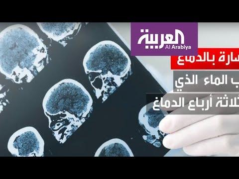 تضرر خلايا المخ بسبب التوتر العاطفي