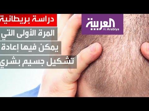 شاهد دراسة بريطانية تكتشف مادة كيميائية تواجه تساقط الشعر