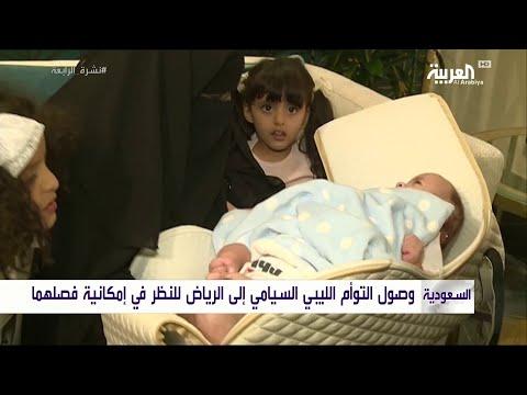 وصول التوأم السيامي الليبي إلى السعودية لفصله
