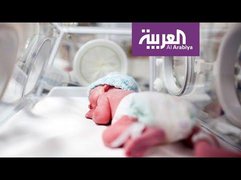 15 مليون طفل يولدون قبل الأوان سنويًا