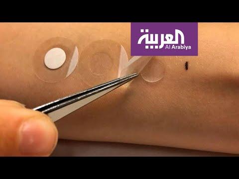 لصقة طبية تشخّص سرطان الجلد خلال دقائق