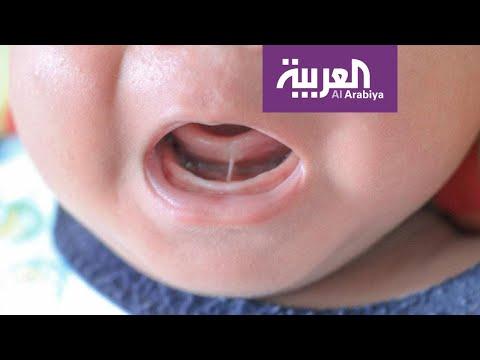 كيف نتعامل مع مشكلة ربط اللسان عند الأطفال