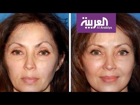 أبرز الإجراءات التجميلية لتخفيف آثار العمر والتقدم في السن