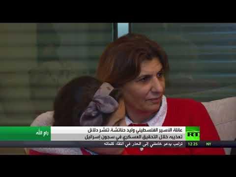 دلائل تعذيب سجون إسرائيل للأسير وليد حناتشة