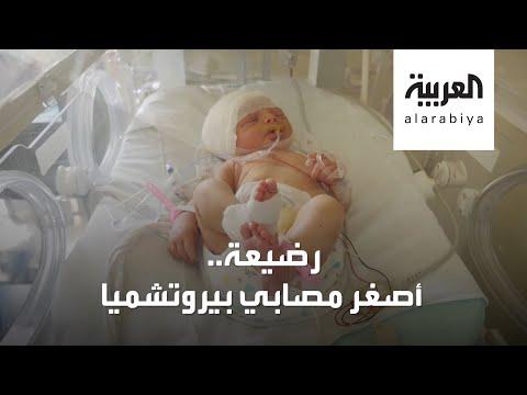 شاهد قصة أصغر مصابة بتفجيرات بيروت خطفت قلوب الجميع